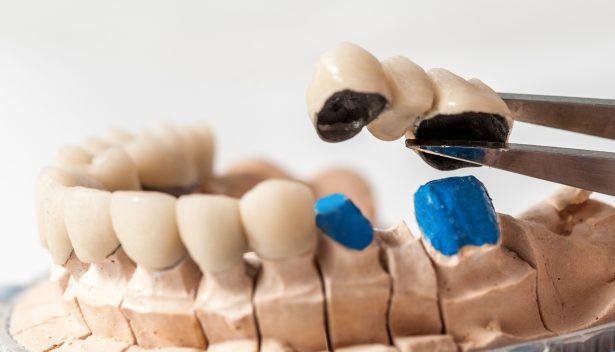 dent artificielle